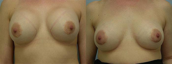 Breast Reconstructive before and after