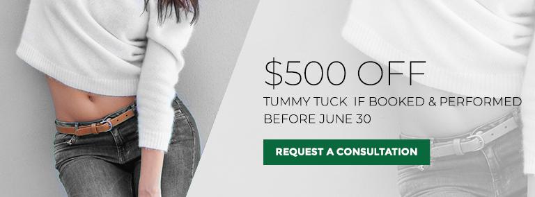 Tummy Tuck Special