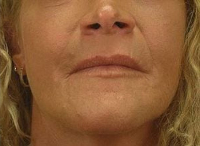Closeup of a blonde female with tighter skin on her under eyes, jawline, and neck after a facial fat transfer surgery