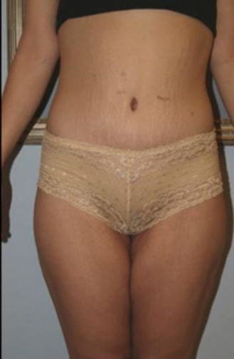 Closeup of a female showing firm and tightened skin while showing a youthful appearance after thigh lift surgery