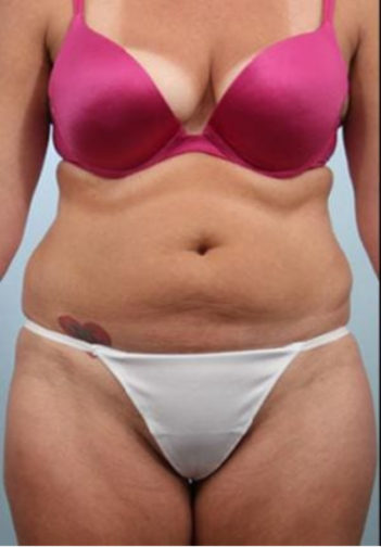 Closeup of a female before a tummy tuck surgery showing visible extra skin in her stomach
