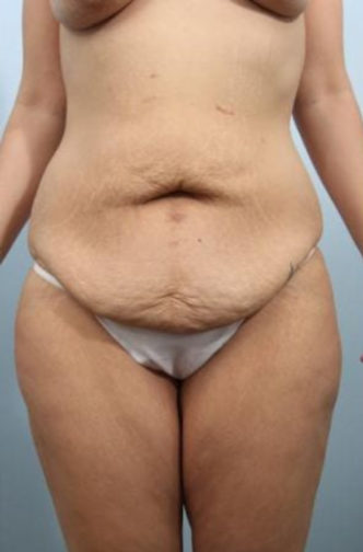 Closeup of a female showing extra skin along her abdomen and hips before thigh lift surgery