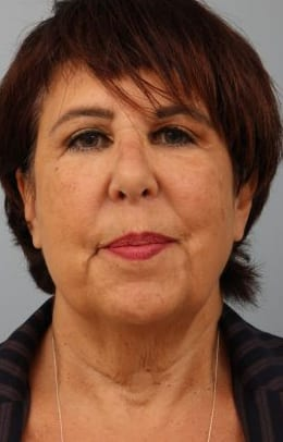 Closeup of a female showing visible jowling in her neck area with wrinkles before a deep plane facelift procedure