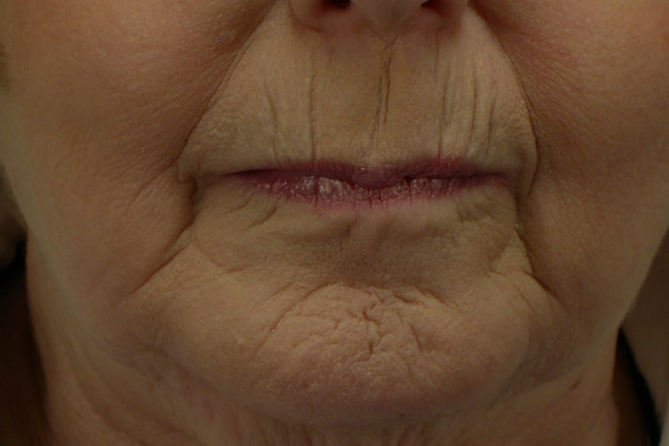 Closeup of a female before CO2 laser surgery showing visible wrinkles around her mouth and chin area