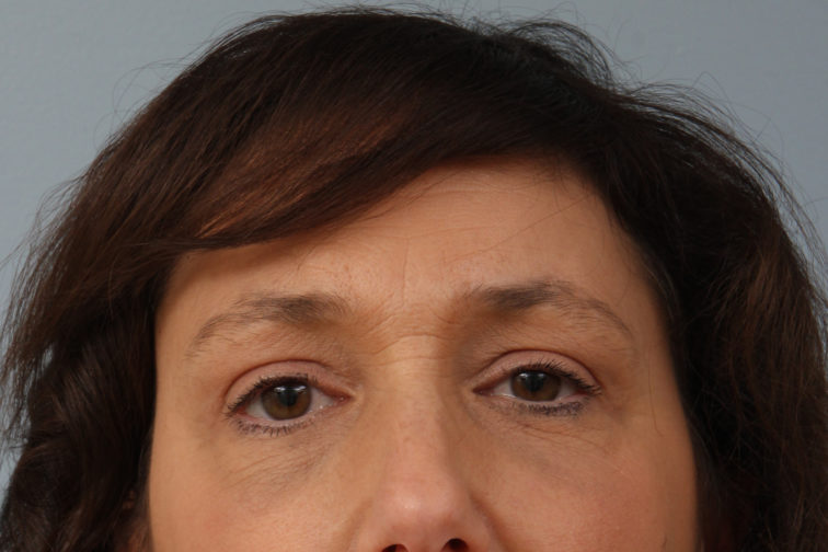 Closeup of a female's front view showing smooth upper eyelids after a brow lift procedure