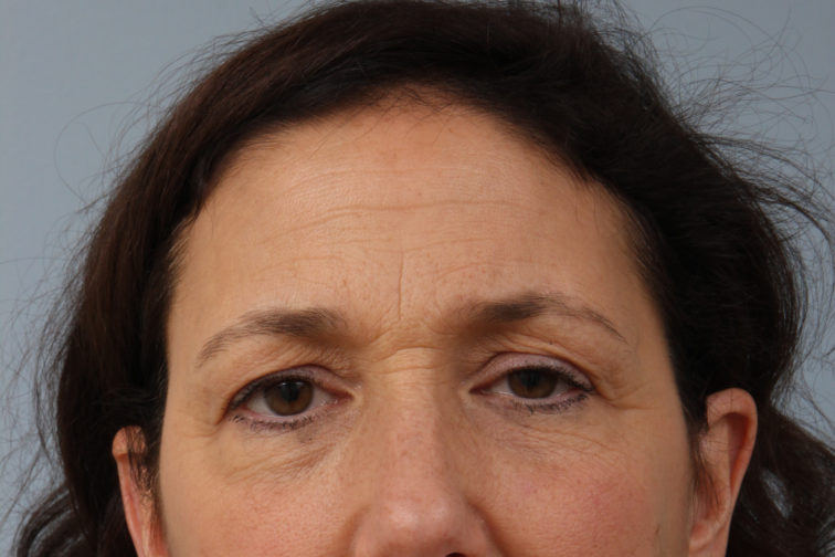 Closeup of a female's front view showing visible eye wrinkles, saggy upper eyelids, before a brow lift procedure