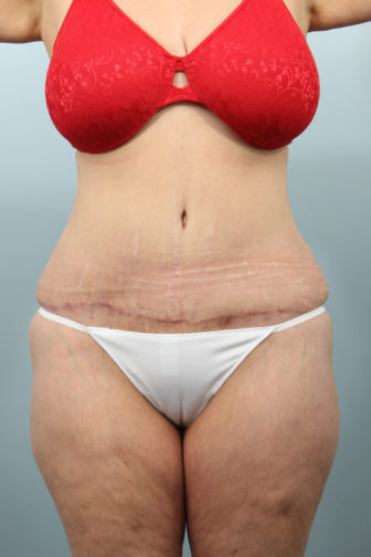 Closeup of a 46 year old female after tummy tuck surgery showing a well defined and tight stomach