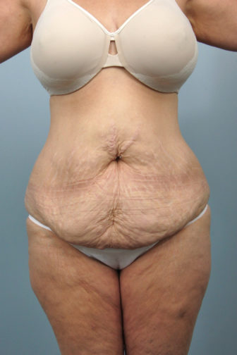 Closeup of a 46 year old female before tummy tuck surgery showing large amount of loose skin wearing white