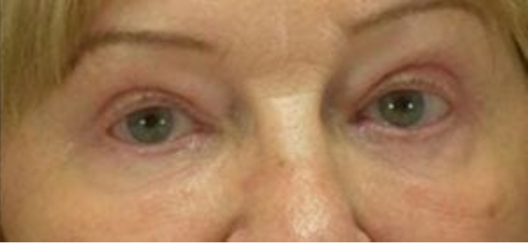 Closeup of a female with tighter skin on her forehead and cheeks after having facial fat transfer plastic surgery