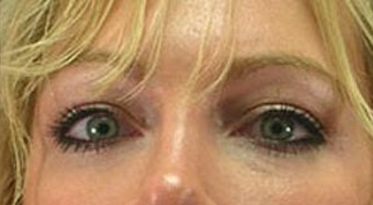 Closeup photo of a female with blue eyes showing tighter and firmer skin in her under eyes after a facial fat transfer