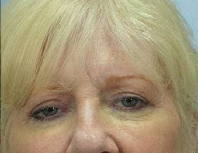 Closeup of a female with blonde hair showing firm skin on her upper and lower eyelids after facial fat transfer surgery