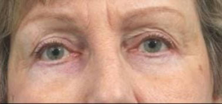 Closeup of an elderly female showing tightened skin in her eyes and jowls after facial fat transfer plastic surgery