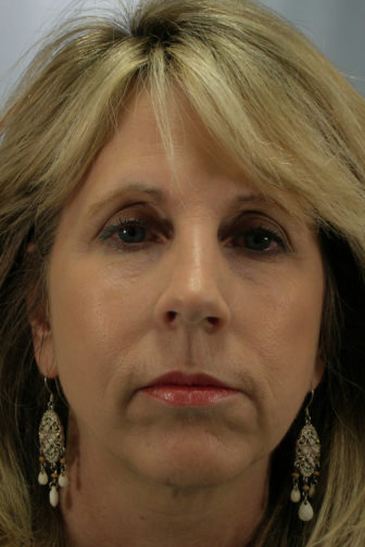Closeup of blonde female before a weekend facelift procedure showing deep jowl lines and wrinkles