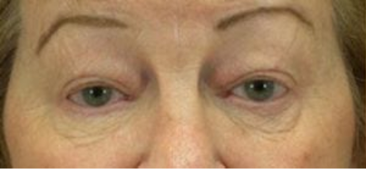 Closeup of a female showing loose skin with evident wrinkles below her eyes before facial fat transfer surgery