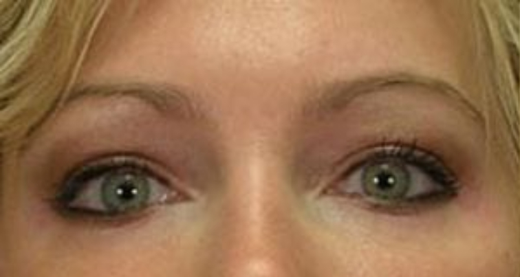 Closeup of a female before having facial fat transfer plastic surgery with puffy, enlarged skin under her lower eyelids