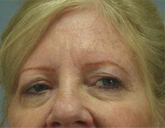 Closeup of a blonde female with loose skin on her upper eyelids with visible wrinkles before facial fat transfer surgery
