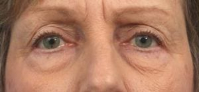 Closeup of an elderly female showing sagginess from her eyes through her cheeks before a facial fat transfer surgery
