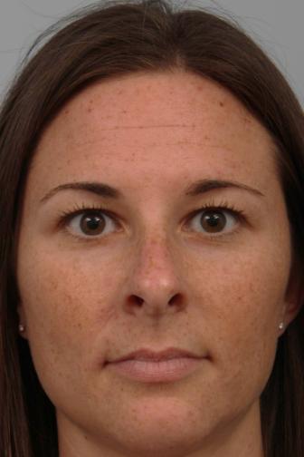 Close-up of brunette female wearing stud earrings showing excess upper eyelid skin before blepharoplasty procedure