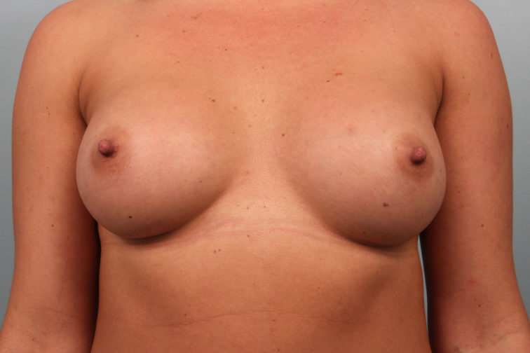 Closeup of a female showing visibly larger breasts after breast augmentation plastic surgery