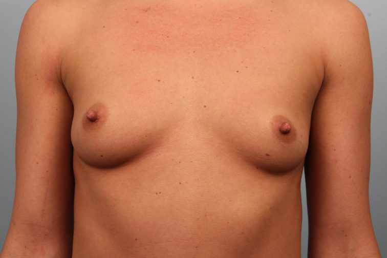Closeup of a female's chest showing droopy and flat breasts before a breast augmentation plastic surgery