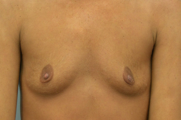 Closeup of a female showing a sagging appearance of her breasts before having breast augmentation surgery