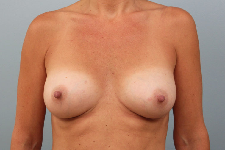 Closeup of a female's body showing a fuller chest after breast augmentation surgery