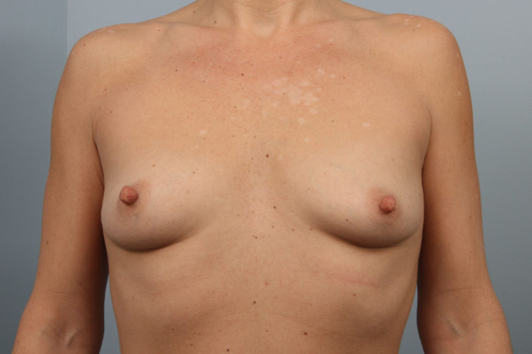 Closeup of a female's body showing small breasts before breast augmentation plastic surgery