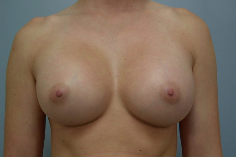 Closeup of a female body showing fuller breasts after breast augmentation plastic surgery