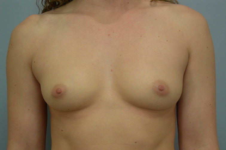 Closeup of a female's body showing petite breasts before breast augmentation plastic surgery