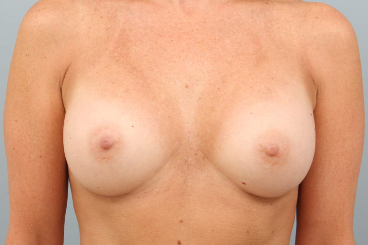 Closeup of a female's body showing fuller and rounder breasts after undergoing breast augmentation plastic surgery