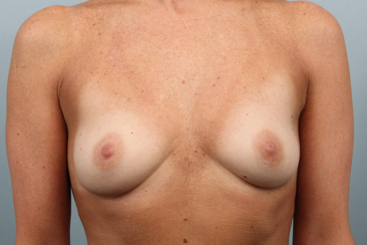 Closeup of a female's body showing smaller breasts before having breast augmentation surgery