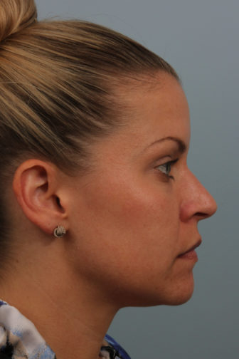 Side profile of a female with blonde hair showing a smooth nasal tip after rhinoplasty surgery