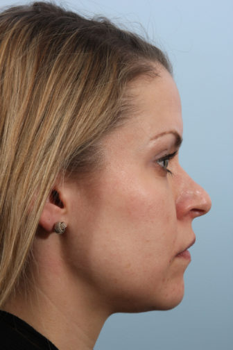 Side profile of a female with blonde hair showing a crooked nasal tip before rhinoplasty surgery