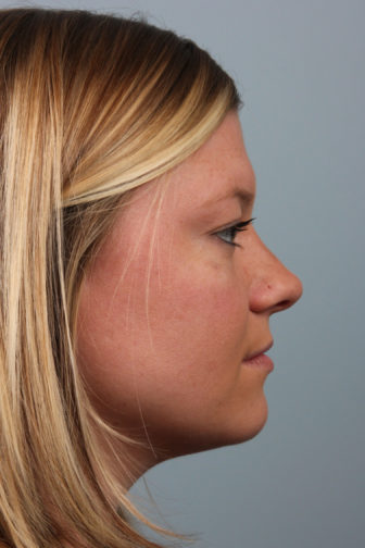 Closeup of a female presenting a well-proportioned angle and upright tip of her nose after a rhinoplasty surgery