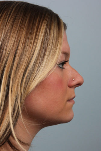 Closeup of a female with a nose stud showing bowed tip and misshapen angle of her nose before a rhinoplasty surgery