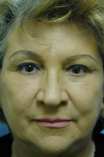 Closeup of an elderly female showing tighten skin on her forehead after an endoscopic brow lift surgery