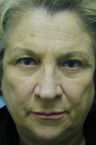 Closeup of an elderly female showing visible wrinkles between her brows and forehead area before an endoscopic surgery