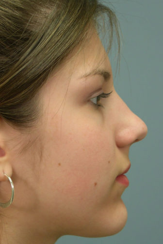 Side view of teenage female with brown hair showing a smooth contour along her nasal bridge after rhinoplasty surgery