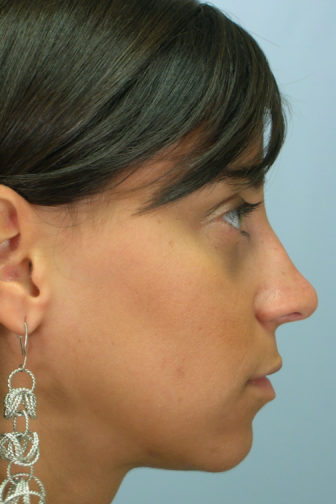 Side profile of a female wearing silver earrings, showing a smoother shaped nose after rhinoplasty surgery