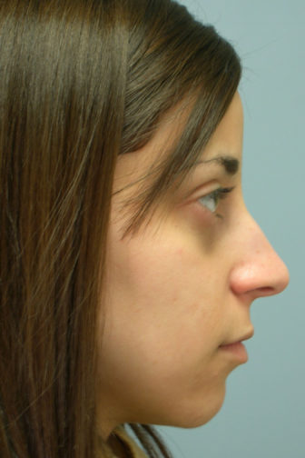 Side profile of a female showing a nasal deformity before rhinoplasty surgery