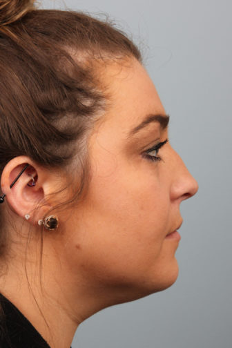 Side profile of a teenage female with brown hair showing a droopy nose before rhinoplasty surgery