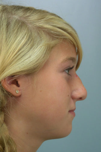 Side profile of a 21 year old female before rhinoplasty surgery showing a bulbous tip and loss of height