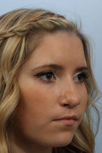 Angled view of a 16 year old female with blonde hair showing a smoother shaped nose after teenage rhinoplasty surgery