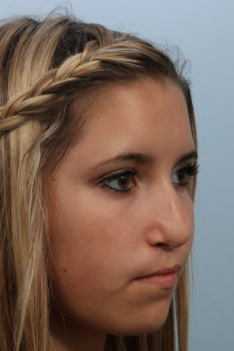 Angled view of a 16 year old female with blonde hair showing distorted nostrils before teenage rhinoplasty surgery