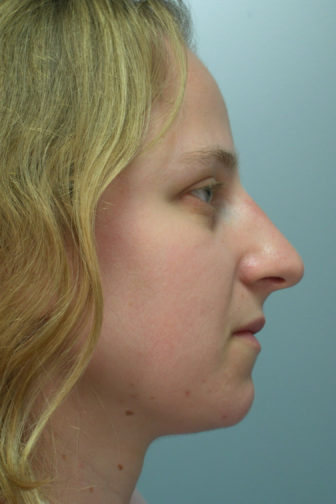 Side profile of a 32 year old female showing a straightened and smoother angle of her nose after rhinoplasty surgery
