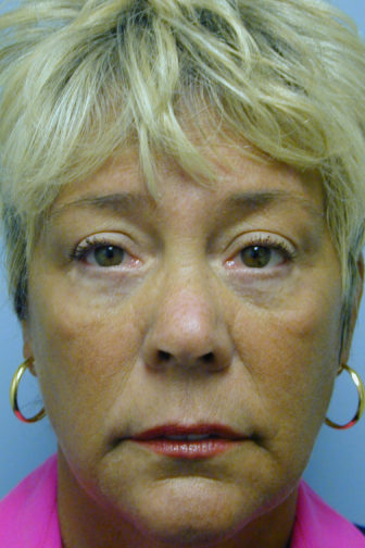 Closeup of a female showing firm skin on her upper and lower eyelids after an endoscopic forehead and midface lift surgery