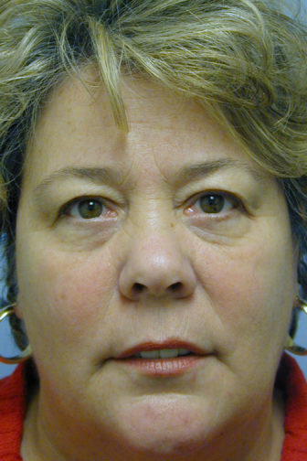 Closeup of a female wearing a red shirt before an endoscopic midface lift procedure showing saggy skin on her forehead and lower eyes