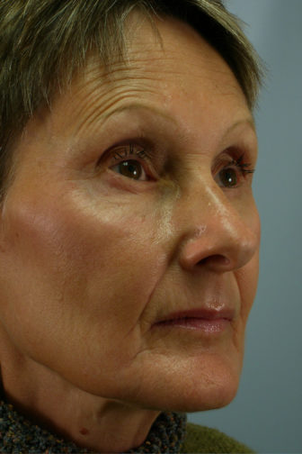 Closeup of female oblique view showing forehead wrinkles before extended weekend facelift procedure