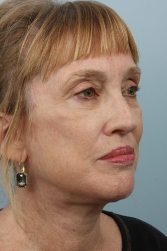 Closeup of a female wearing black earrings with tighter skin on her jowls and neck after weekend facelift procedure