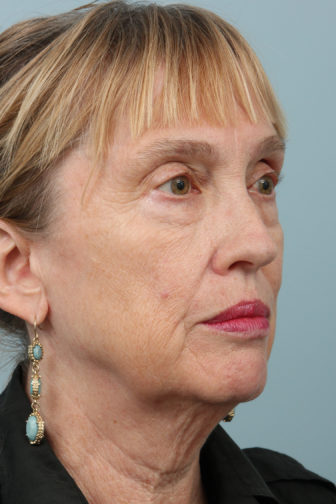 Closeup of a female wearing earrings and a black polo shirt showing saggy jowl and neck skin before weekend facelift